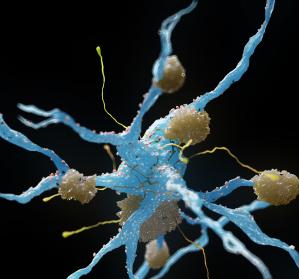 Merkmale der Zelldifferenzierung bei Alzheimer-Erkrankten: Verblüffende Ähnlichkeiten zu Krebszellen