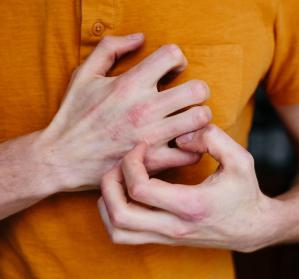 COVID-19 & Haut: Vom Nesselausschlag bis zu COVID-Zehen