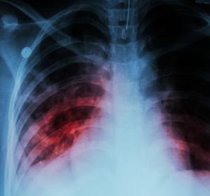 Systemische Sklerose mit Lungenbeteiligung: Weniger Verlust an Lungenfunktion durch Nintedanib