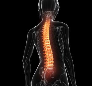 Ankylosierende Spondylitis: Sicherheit und Wirksamkeit von Upadacitinib