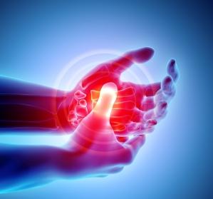 Psoriasis-Arthritis: ACR20 in W24 unter Guselkumab?