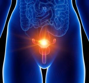 Risikoaufklärung bei Polyzystischem Ovarsyndrom und Typ-2-Diabetes