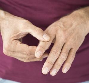 Filgotinib: Therapie der rheumatoiden Arthritis im Praxis-Check