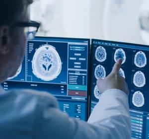 Humane endogene Retroviren: Massive Beeinträchtigung der Gehirnentwicklung?