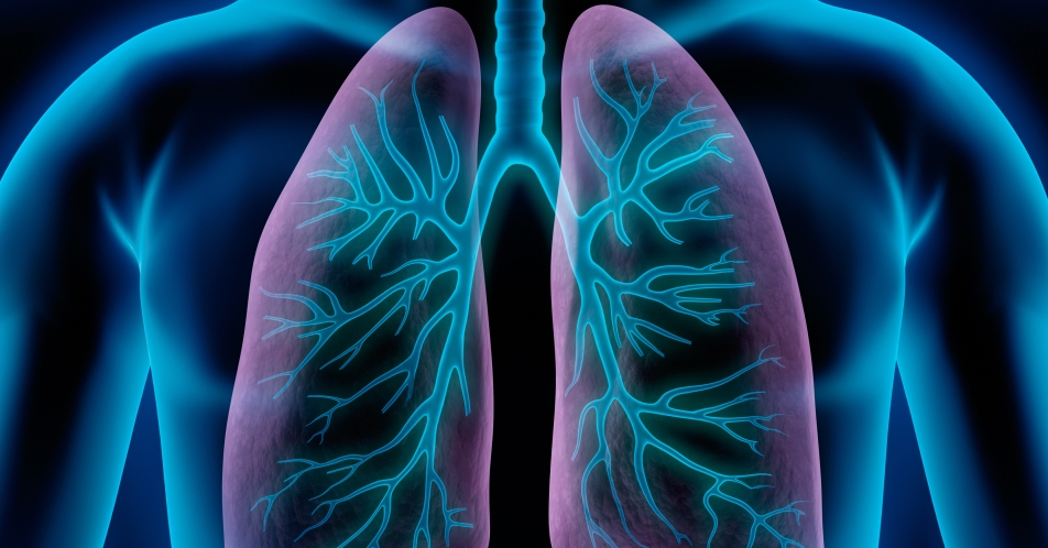 Schweres eosinophiles Asthma: MELTEMI-Studie zu Benralizumab