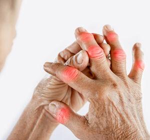 Rheumatoide Arthritis beim EULAR 2021
