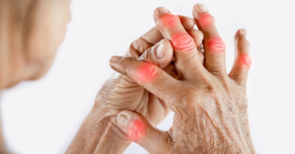 Rheumatoide+Arthritis+beim+EULAR+2021