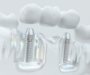 Zahn um Zahn: Ein gesundes Gebiss hält auch den Körper gesund