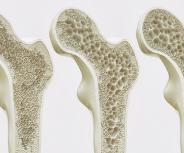 Bei Cortisontherapie Knochendichte im Blick behalten