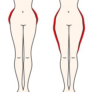 Oft unerkannt: Frauenkrankheit Lipödem