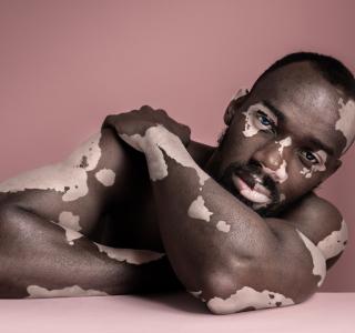 Hilfe für Vitiligo-Erkrankte