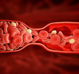 Statine: Warum sind die Cholesterinsenker bei Patienten so unbeliebt?