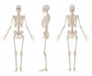 Osteoporose-Informationsbroschüren erstmals türkischsprachig