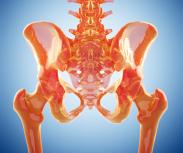 Oft unerkannt: Hüftdysplasie beim Erwachsenen