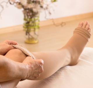 Krampfadern: Wann Beinvenen behandelt werden müssen