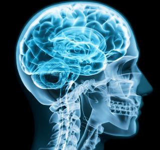 Epilepsie: Es kann jeden treffen