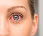Neue Studie von Lenstore deckt auf, wie man die Welt mit den geläufigsten Augenerkrankungen sieht