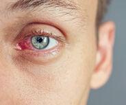 Verschiedene Erkrankungen im Auge erkennbar