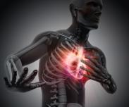 Vorhofflimmern: Katheter-Ablation verbessert Erfolgschancen