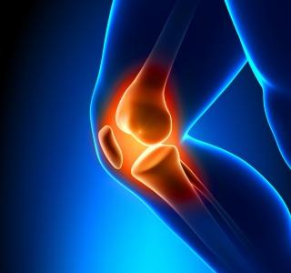 Über 6 Millionen an Osteoporose erkrankt